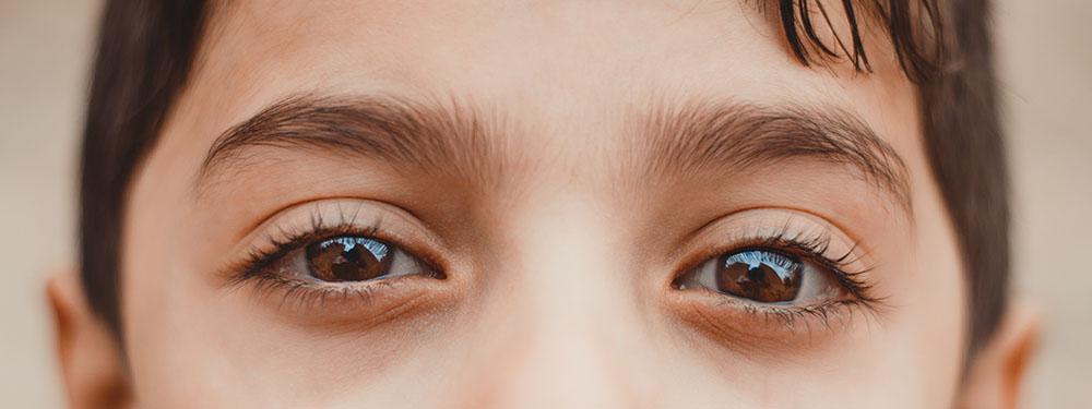 23+ Kenapa mata bengkak setelah bangun tidur ideas