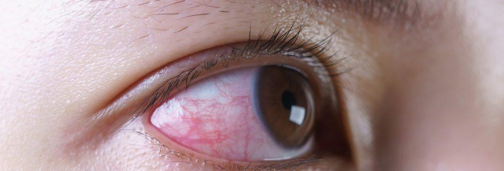 mata-Konjungtivitis